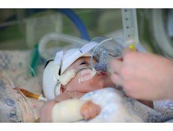 Anaokulunda 50 Öğrenci Menenjit Hastalığına Yakalandı: 1 Ölü