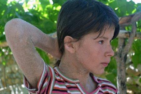 Balık derili kız, Sağlık Bakanı Mehmet Müezzinoğlu'ndan yardım istedi