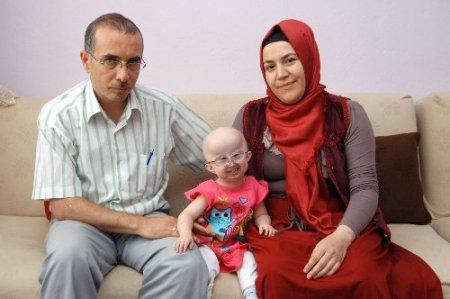 Ünver ailesi 5 yaşındaki kızlarına derman arıyor